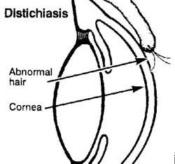 Jack russell terrier jrtca medical in a dogs eye distichiasis is a condition in which small hair structures abnormally grow on the inner surface of the eyelids see diagram both upper and lower lids ccuart Image collections